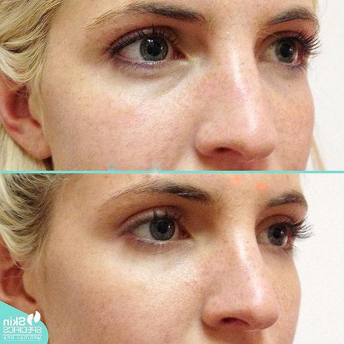 коррекция носослезной борозды филлерами до и после