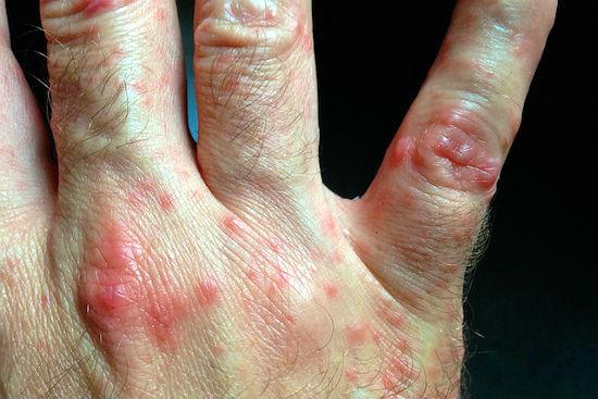осложнения от приема статинов