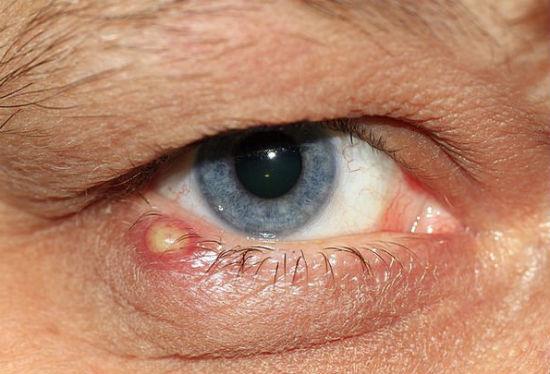 Ячмень на глазу беременной лечение 51