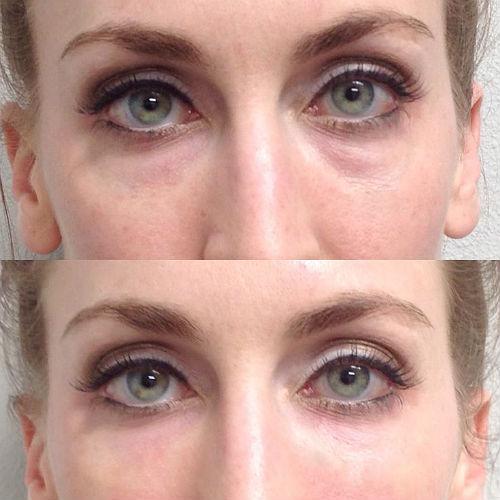 фото до и после коррекции носослезной борозды