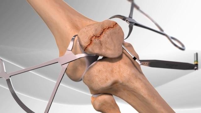 костно-хрящевая трансплантация