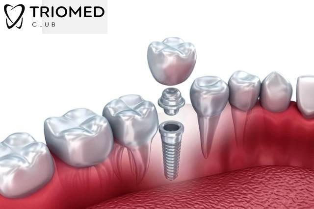имплантация зуба